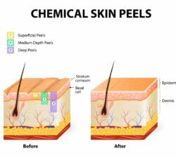 Are Chemical Peels Right for Me?
